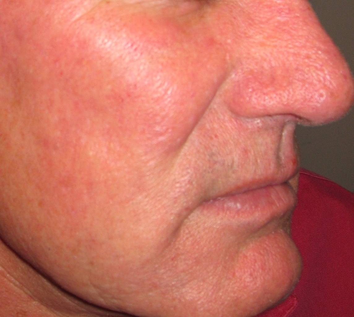 Picture of glabella with Rosacea & ruptured vessels post vascular laser treatment