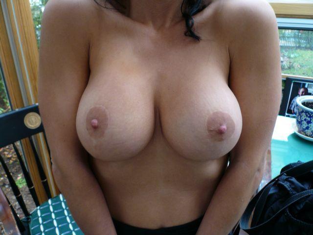 image of beautiful Breast following Lift Mastopexy + Implant Rhode Island Female Plastic Surgeon
