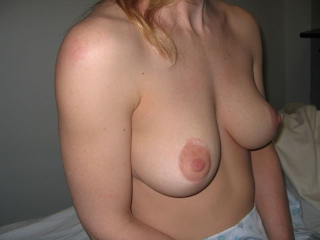 image of Breast Lift Mastopexy + Implant Rhode Island Female Plastic Surgeon Preop