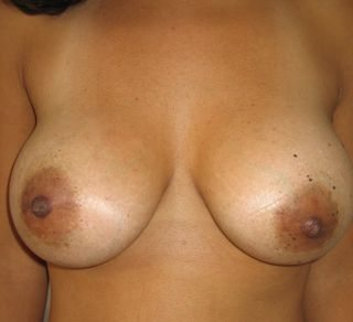 image of Breast Lift Mastopexy + Implant Rhode Island Female Plastic Surgeon Preop