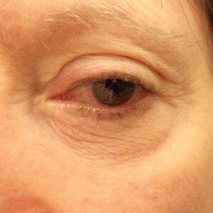 PreOp Blepharoplasty facelift rhytidectomy eyelid tightening