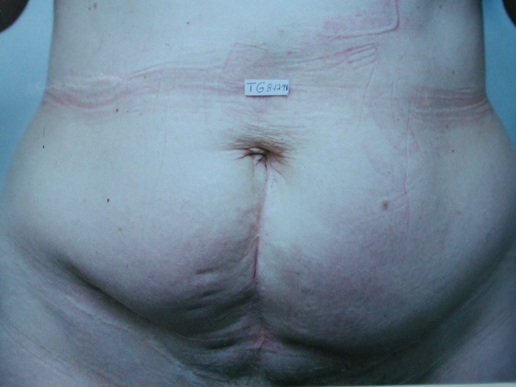 image of preop abdomioplasty tummy tuck mommy make over surgery by Dr. O'Sullivan
