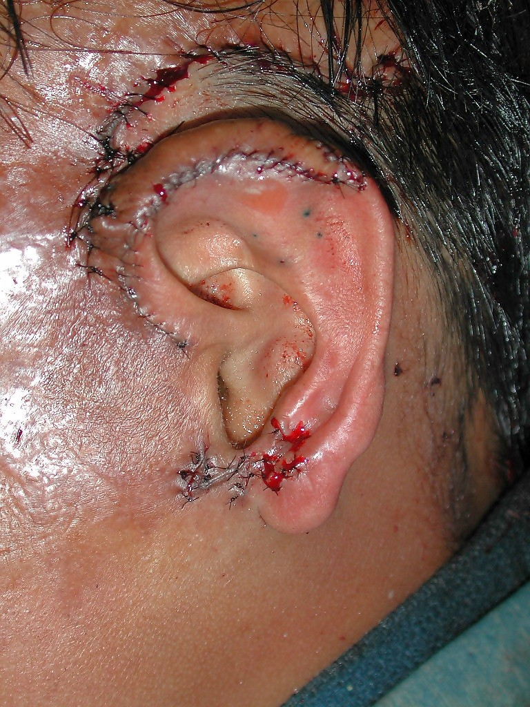 Picture of an ear which was burned off
