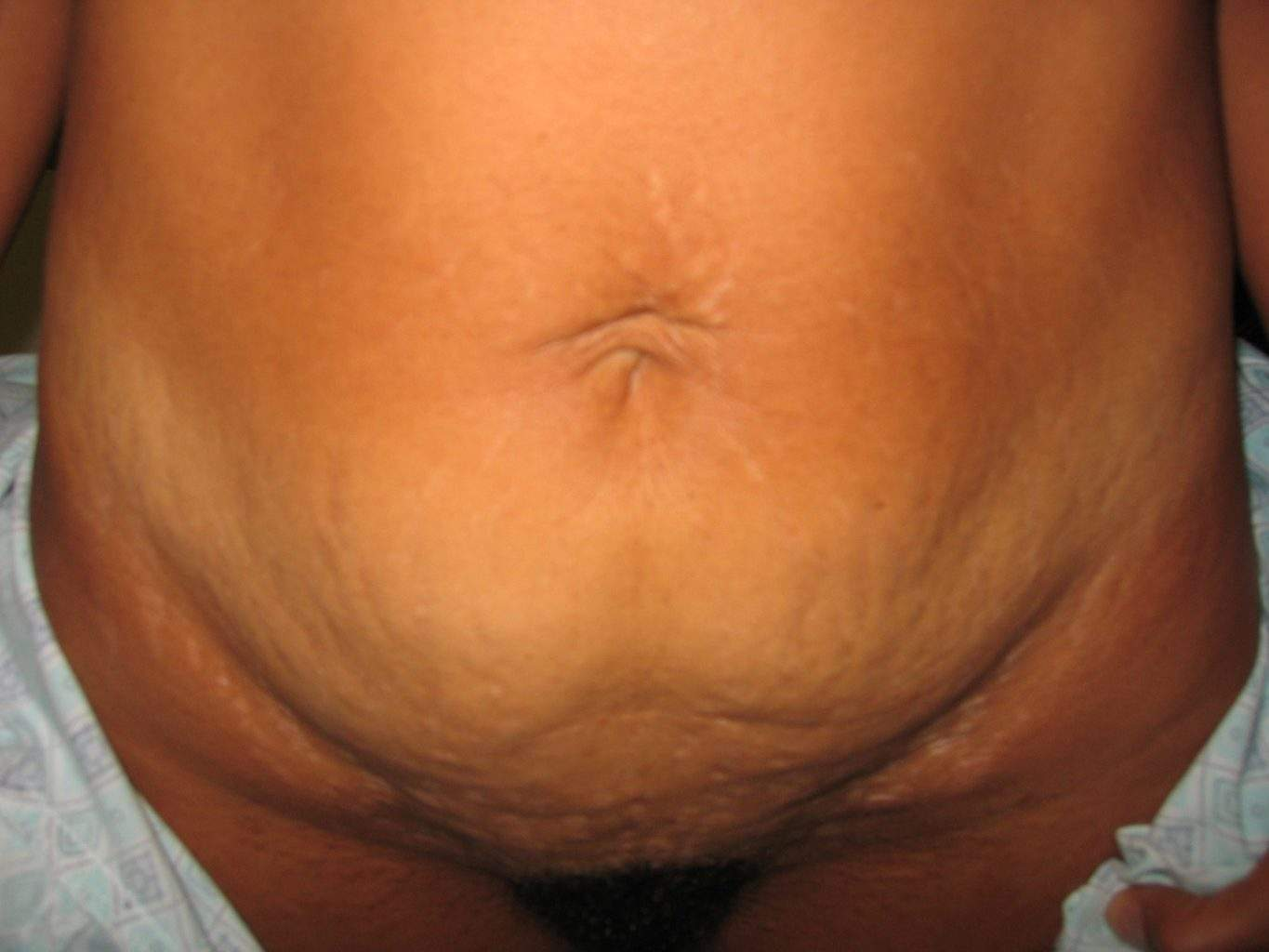 image of preop mini abdomioplasty tummy tuck mommy make over surgery by Dr. O'Sullivan