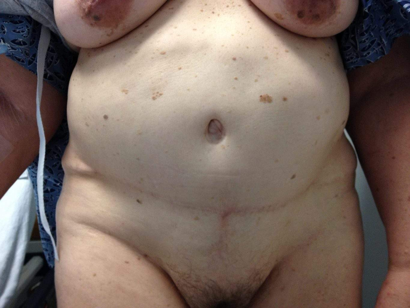image of preop abdomioplasty tummy tuck mommy make over surgery to be revised by Dr. O'Sullivan