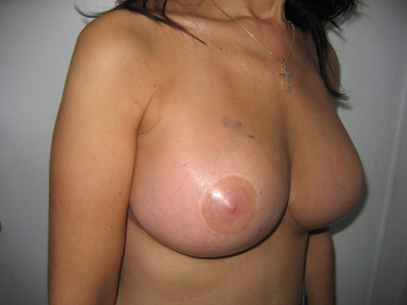 image of beautiful Breast following Lift Mastopexy + Implant Rhode Island Female Plastic Surgeon