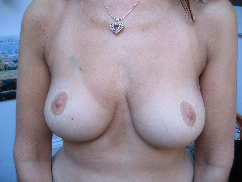 Image of beautiful Breast following Lift Mastopexy Rhode Island Female Plastic Surgeon
