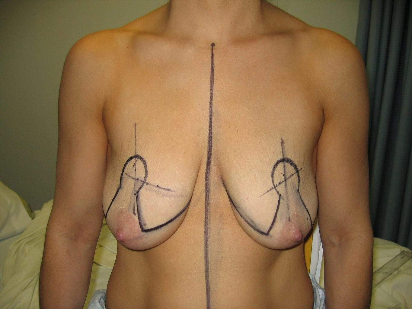 image of deflated ptotic breast with markings for breast Lift Mastopexy + Implant Rhode Island Female Plastic Surgeon Preop