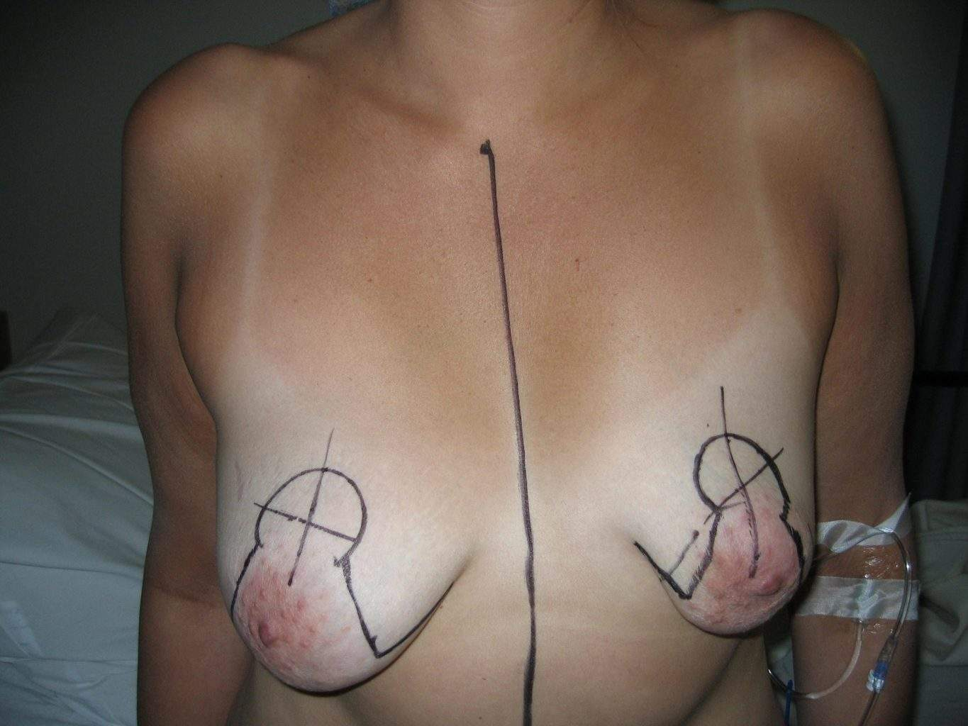Image of asymmetric tubular breast scheduled for cosmetic Breast Lift Mastopexy + Implant Rhode Island Female Plastic Surgeon Preop