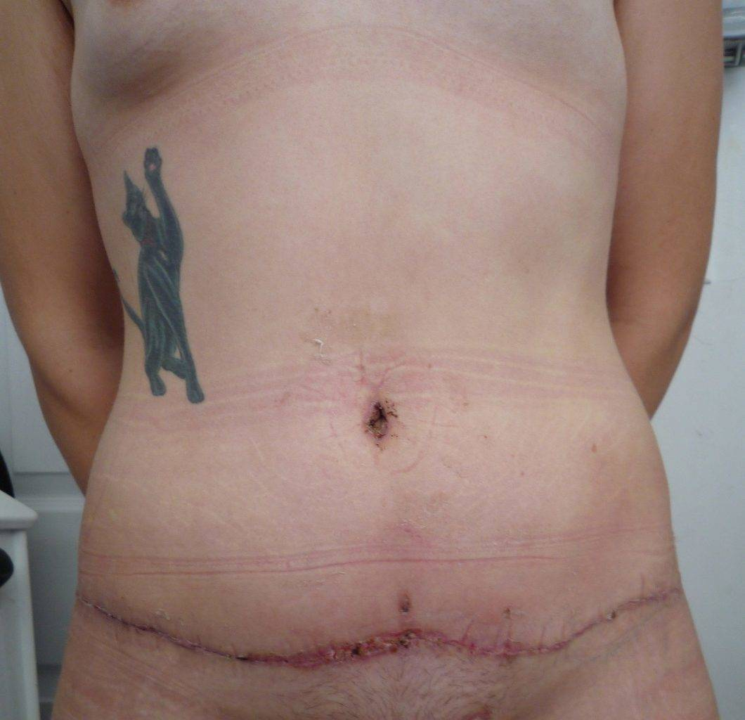 image of amazing best contour post abdominoplasty tummy tuck mommy make over surgery