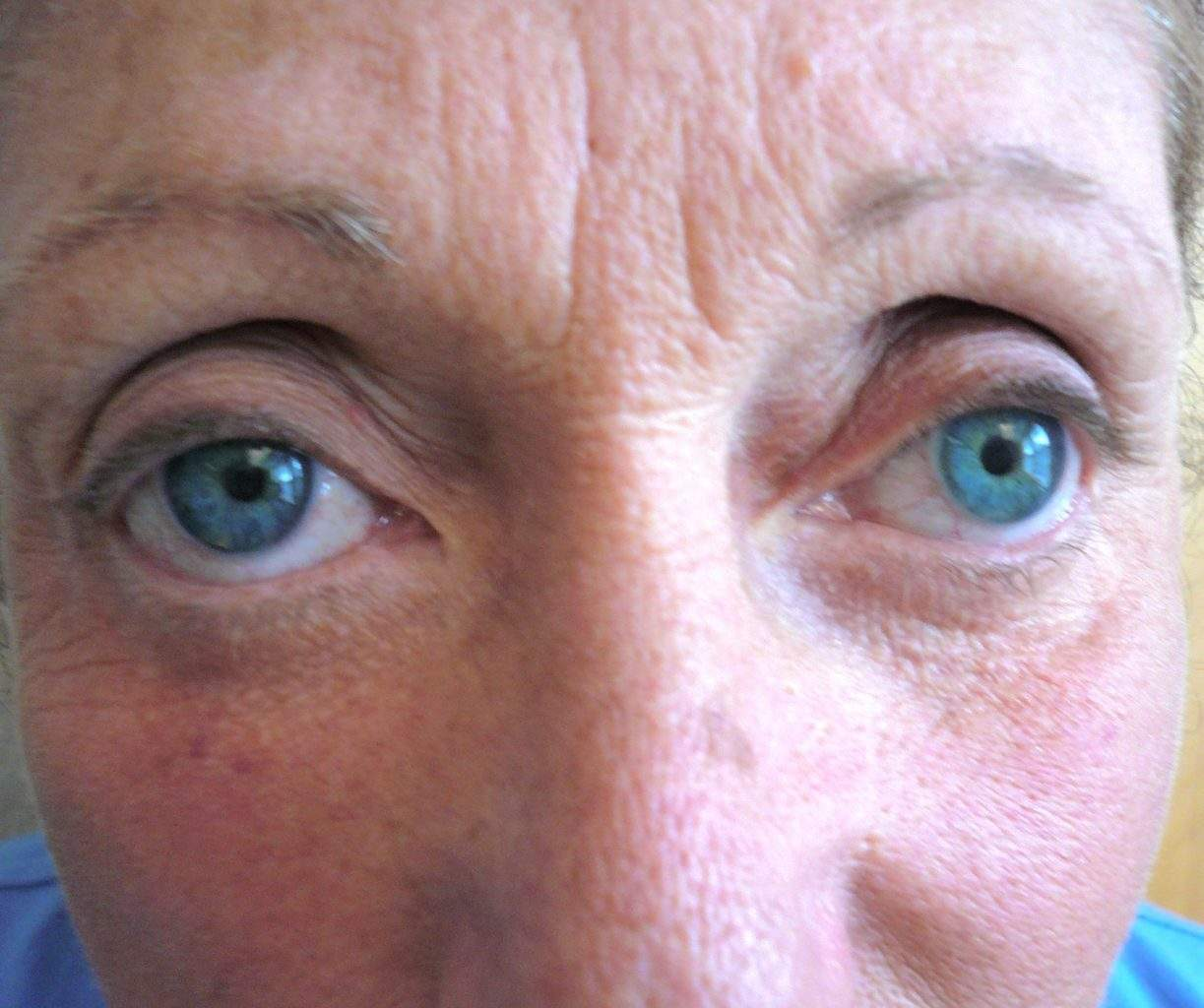 Image of post op Blepharoplasty Eyelid tightening with perfect results and non-visible scar by Best R.I. Plastic Surgeon