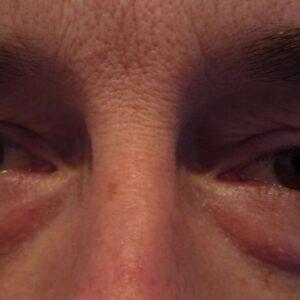Blepharoplasty ~ Eyelid Tightening Pre Op 9