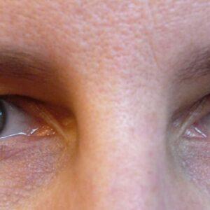 Blepharoplasty ~ Eyelid Tightening Pre Op 27