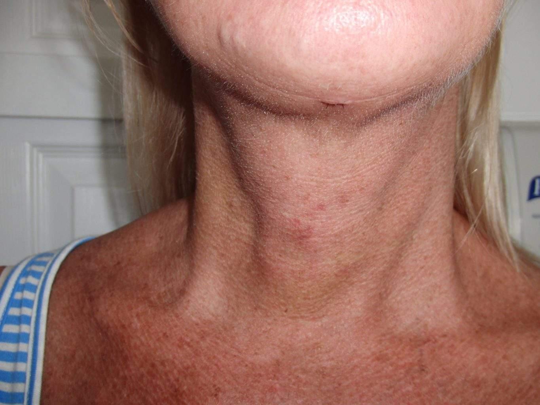 Post Op image of excellent Smartlipo Neck Liposuction