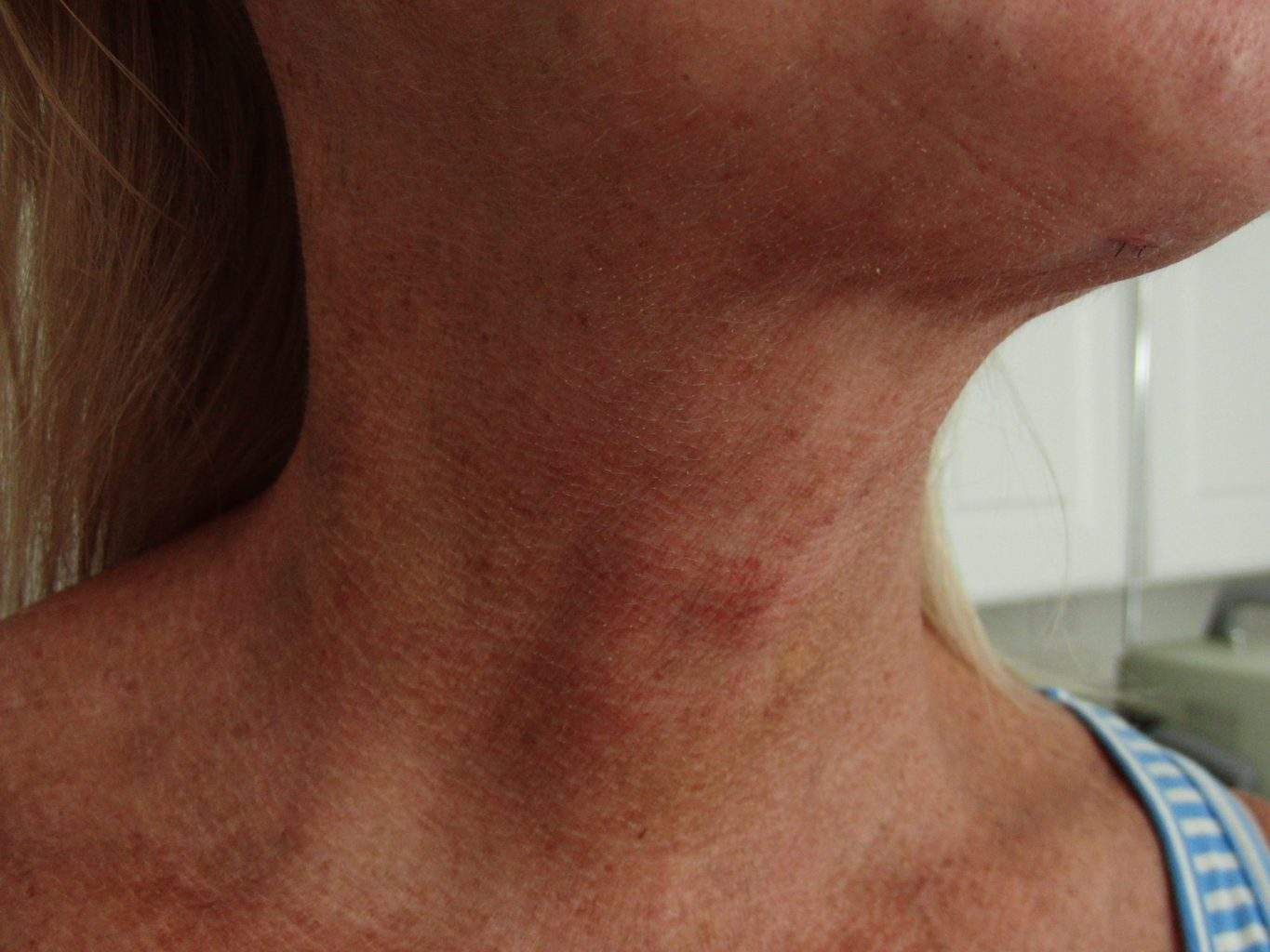 Post Op image of excellent Smartlipo Neck Liposuction