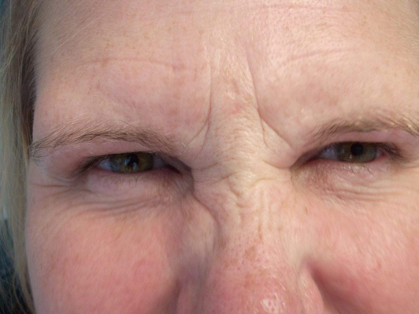 Image of pre treatment forehead treated with Dysport or Botox Paralytic