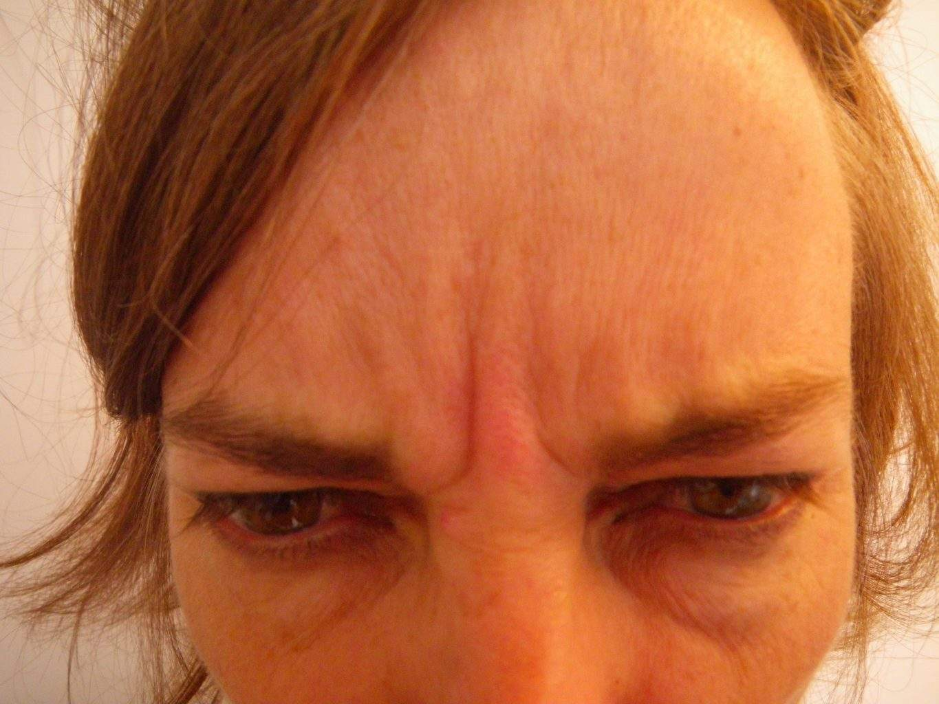 Image of post treatment forehead treated with Dysport or Botox Paralytic with excellent result