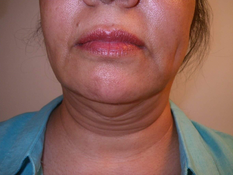 preop Image of best Smartlipo Neck Liposuction