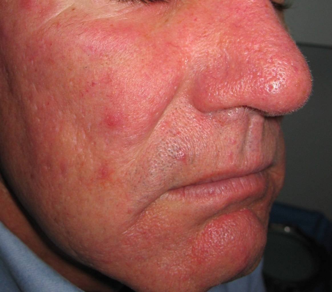 Picture of glabella with Rosacea & ruptured vessels prior to vascular laser treatment