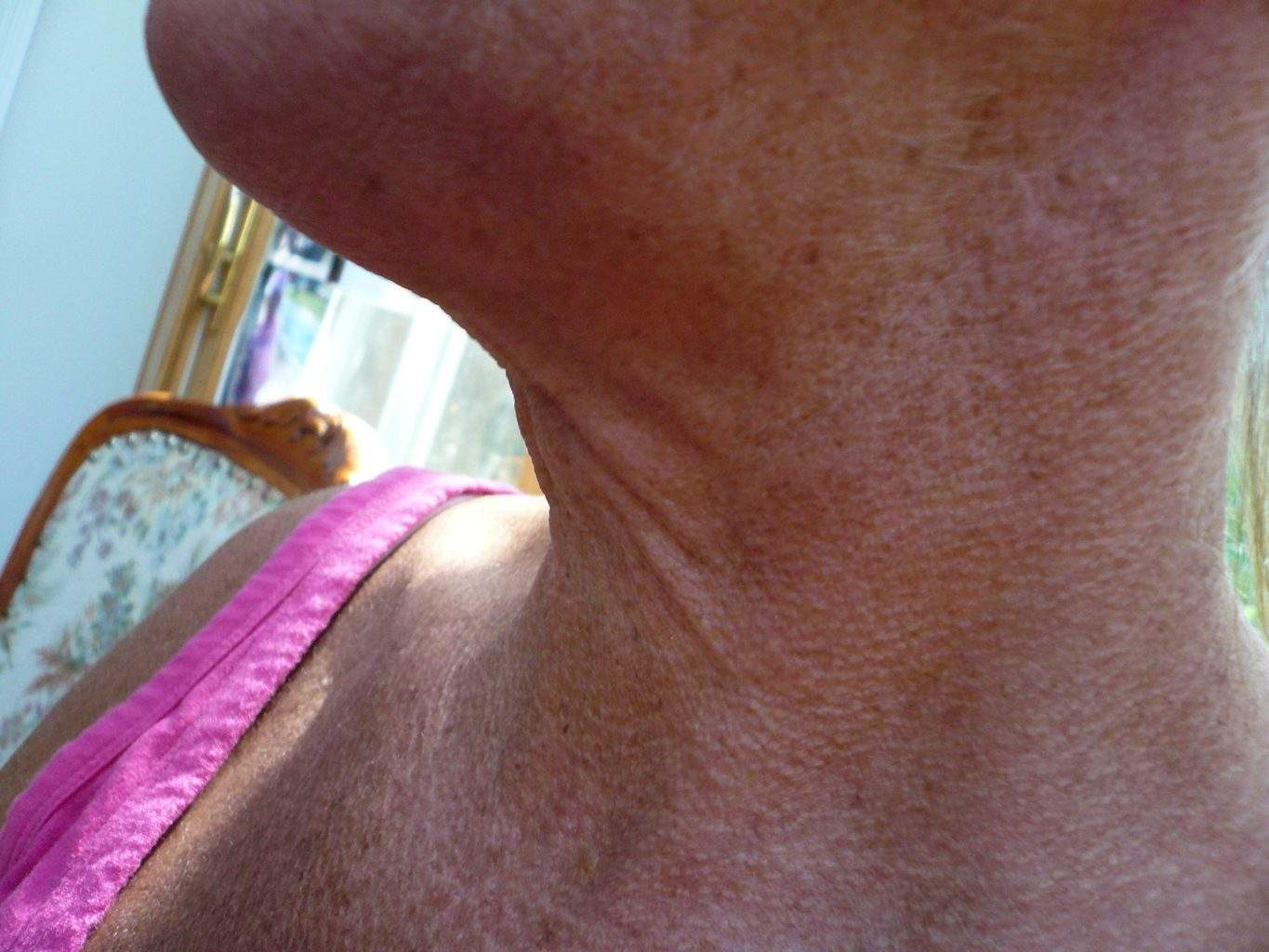 preop Image of best Smartlipo Neck Liposuction