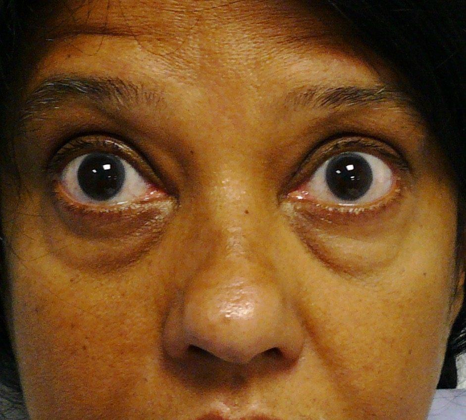 Image of Eyelid Tightening Blepharoplasty Preop by Rhode Island  Plastic Surgery excellence