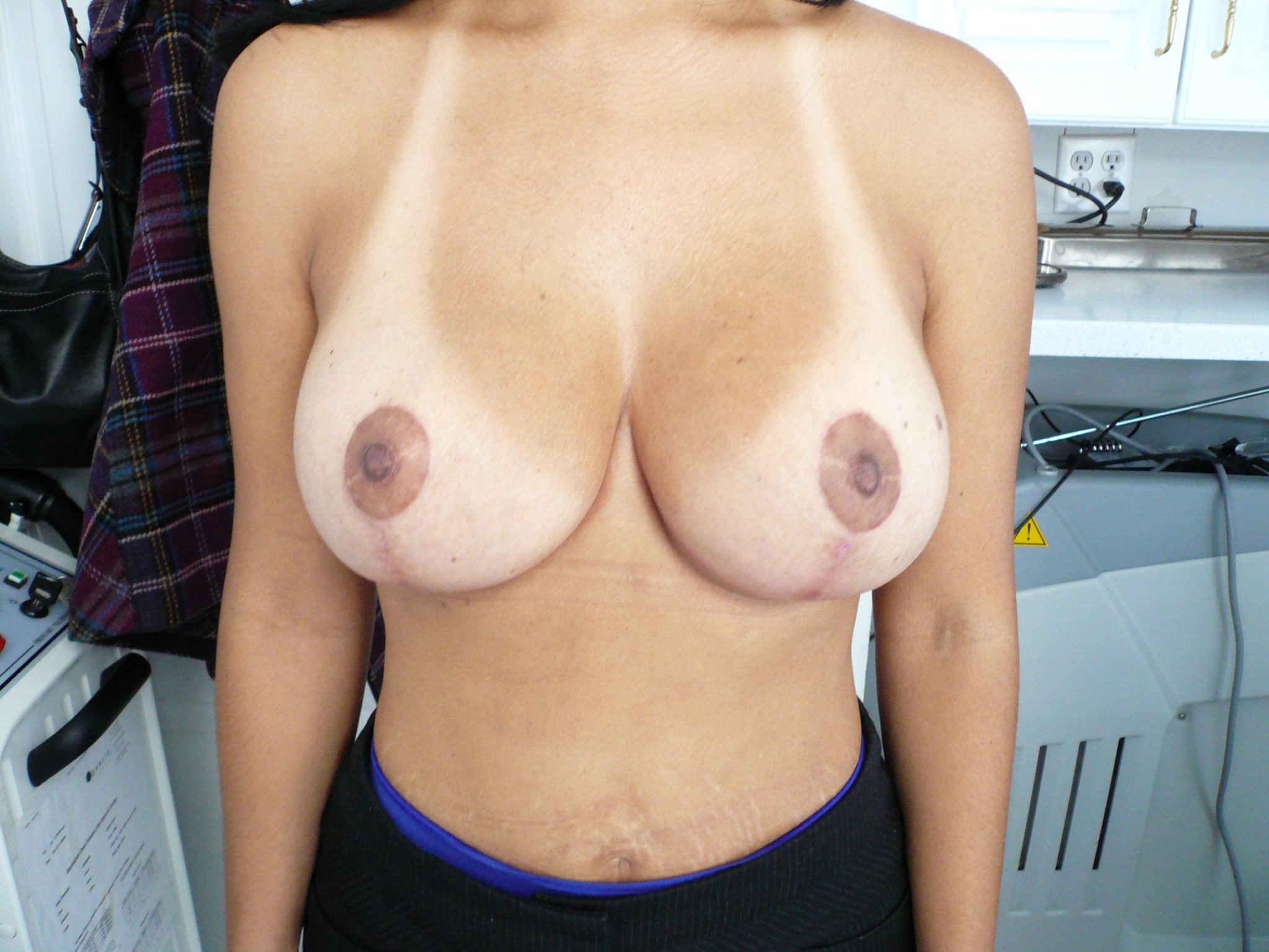 Mastopexy Breast Lift Augmentation Implant Post Op