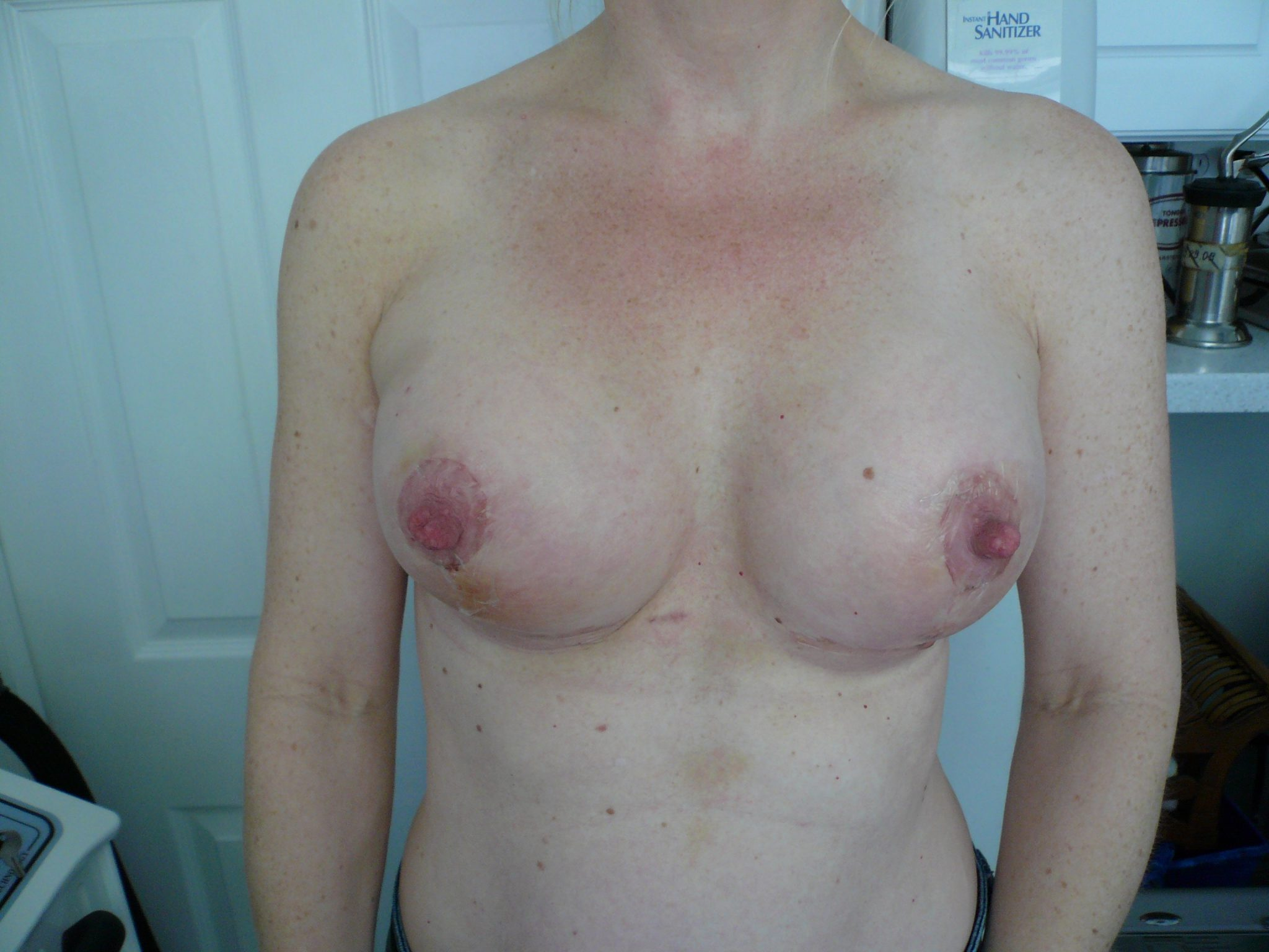 Post operative picture of symmetric breast following mastopexy breast lift with augmentation creating symmetric and nice sized areola and full rounded breast