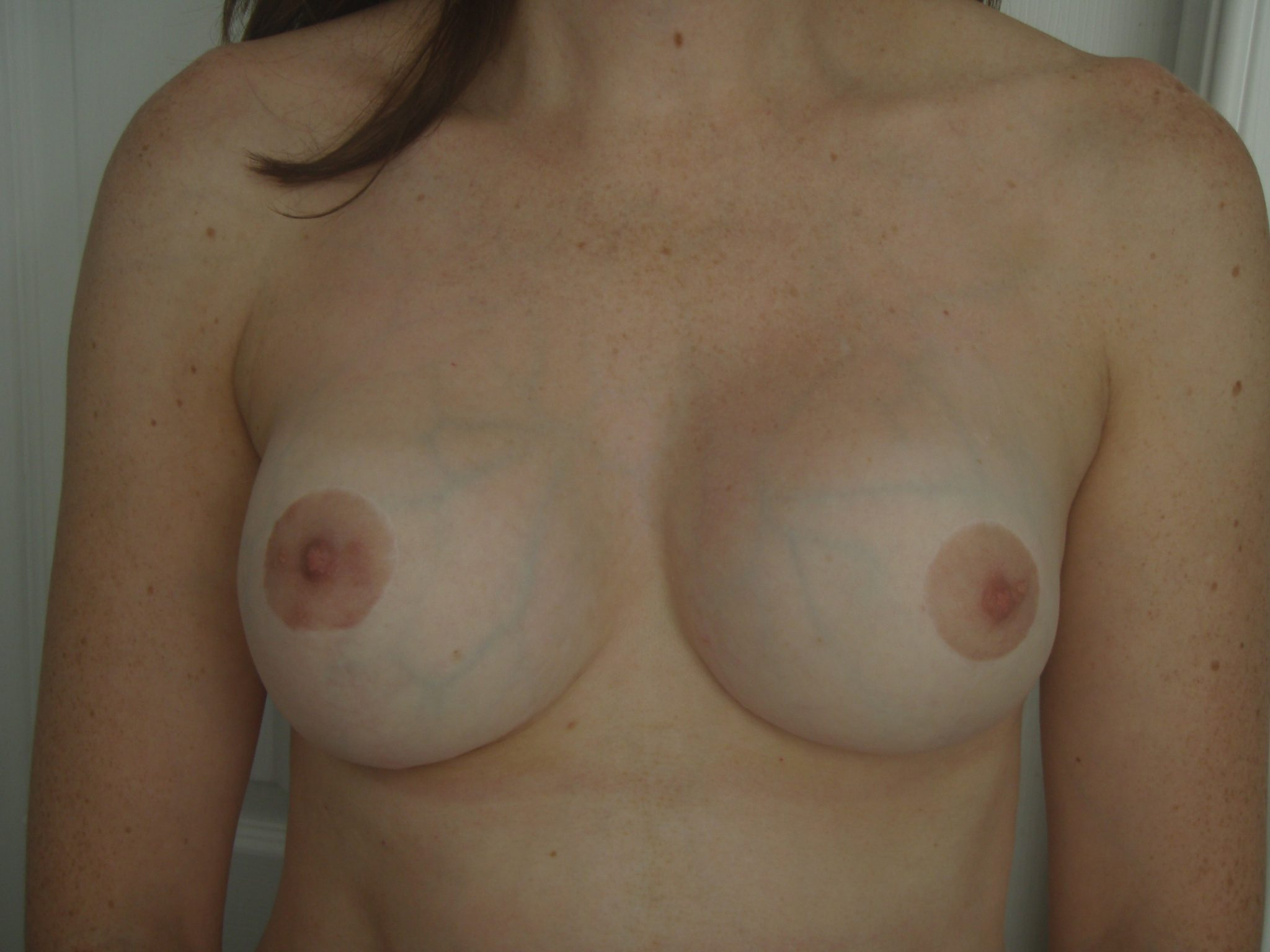 Picture showing symmetry and invisible scars following Mastopexy Breast Lift Augmentation Implant Post Op