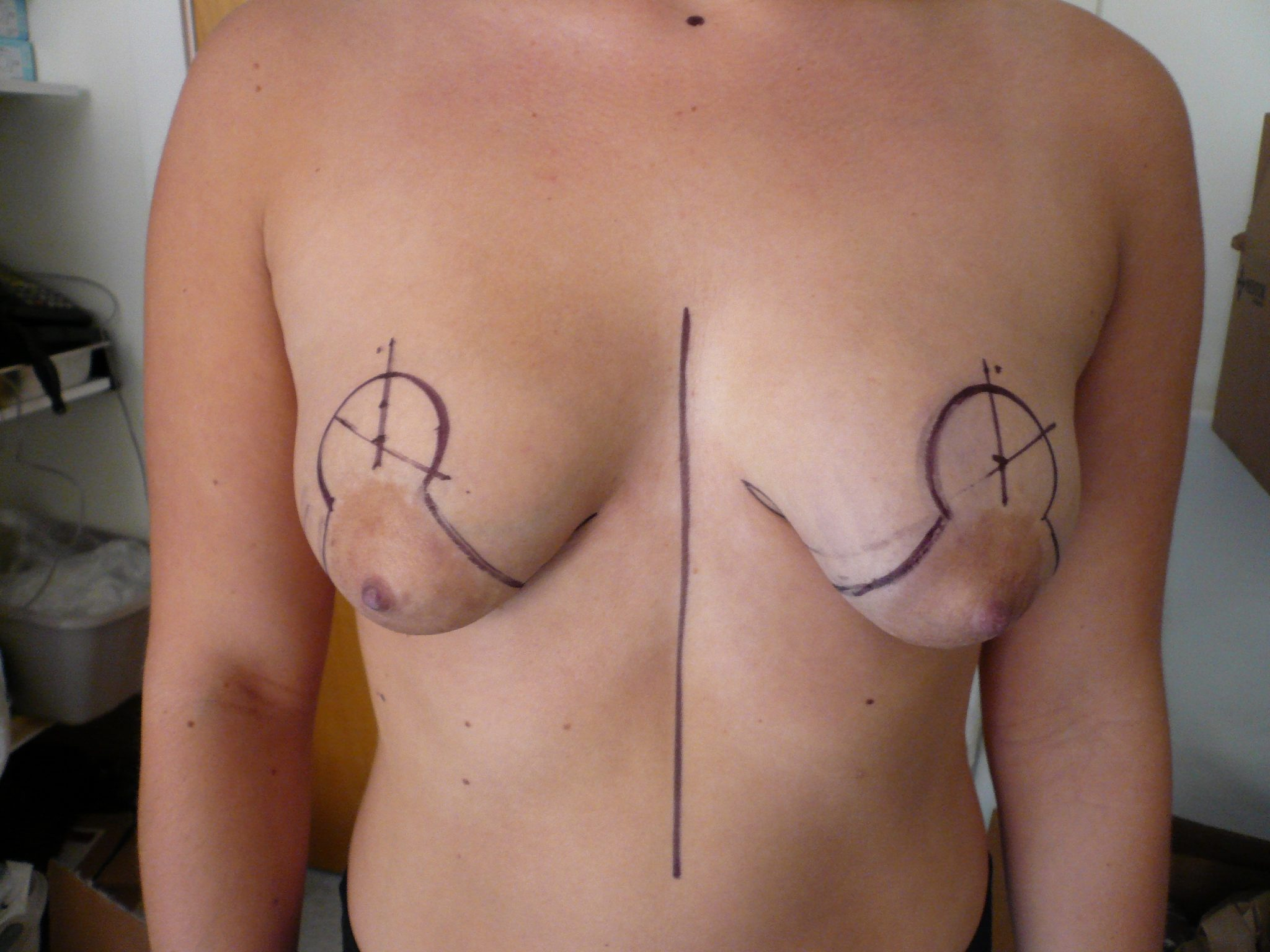 Photo of ptotic pointy breast being treated by Dr. O'Sullivan with Mastopexy Breast Lift Augmentation Implant Pre Op