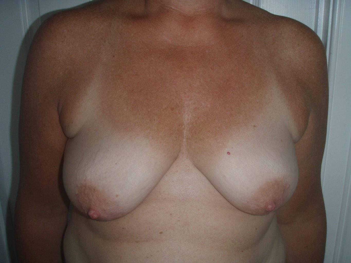 Mastopexy Breast Lift Augmentation Implant Pre Op