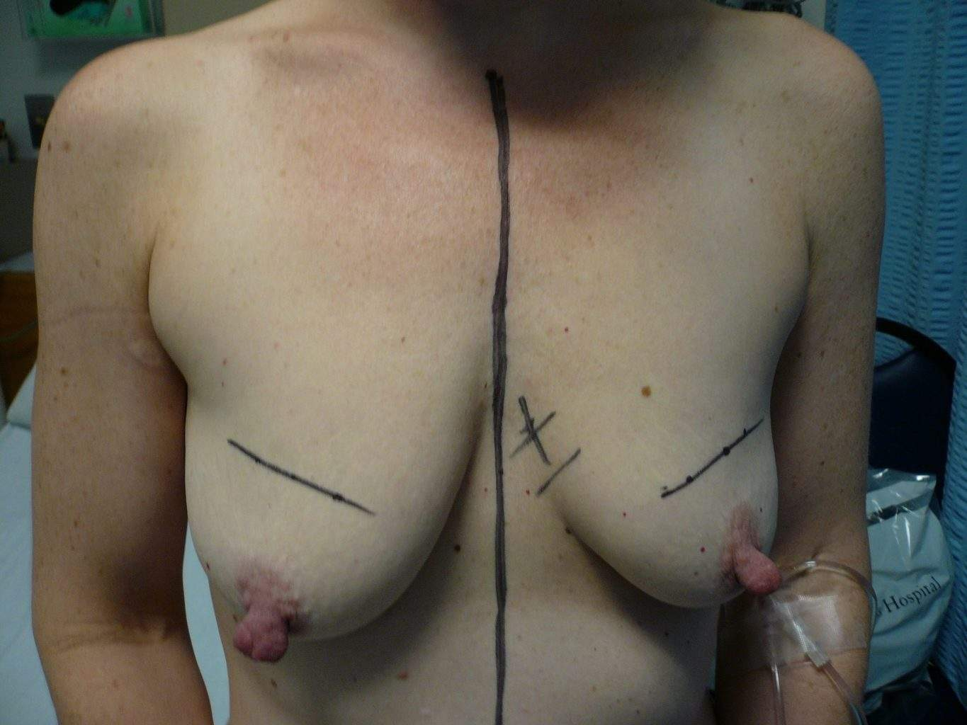 Picture of asymmetric breast with large nipples prior to Mastopexy breast lift surgery with augmentation mammoplasty